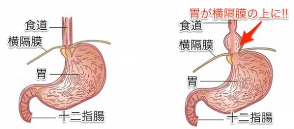 types-of-hiatal-hernias