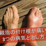hurts-the-base-of-the-big-toe