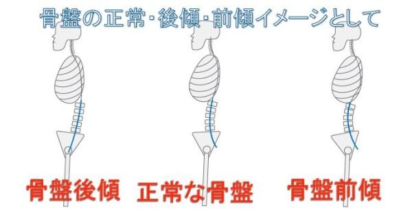 pelvic-tilt-graphic