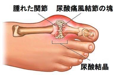 の 付け根 の 痛み 親指 足 の